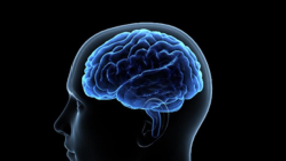 早期アルツハイマー型認知症診断支援システム(VSRAD)のご案内